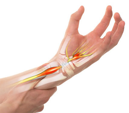 carpal, tunnel, relief, massage